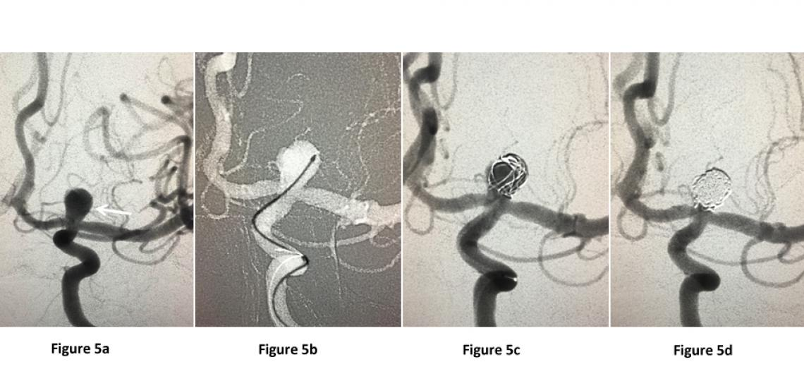 Figure 5. Brain angiogram