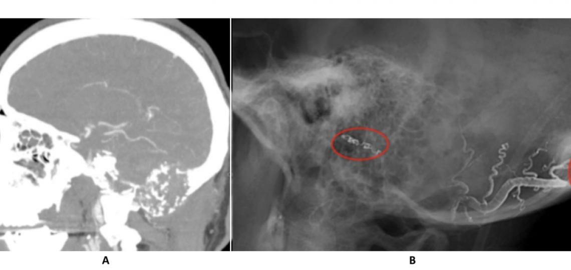 CT angiogram (A) reveals a large skull base tumor. Post embolization angiogram (B) shows liquid embolics (Onyx) in the feeding vessels supplying the tumor.