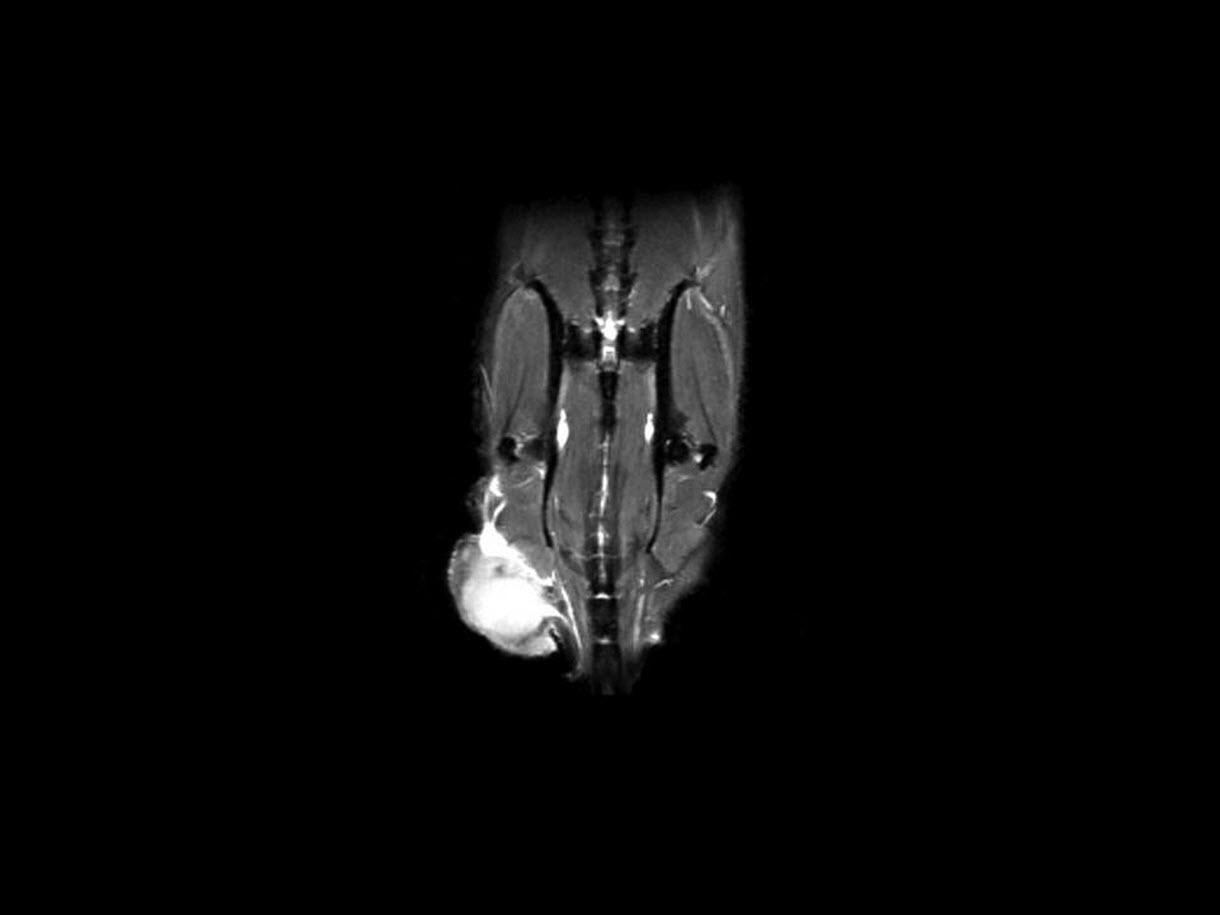 Rhabomyosarcoma in mouse