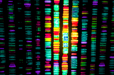 Analytical tool predicts genes that can cause disease by producing altered proteins