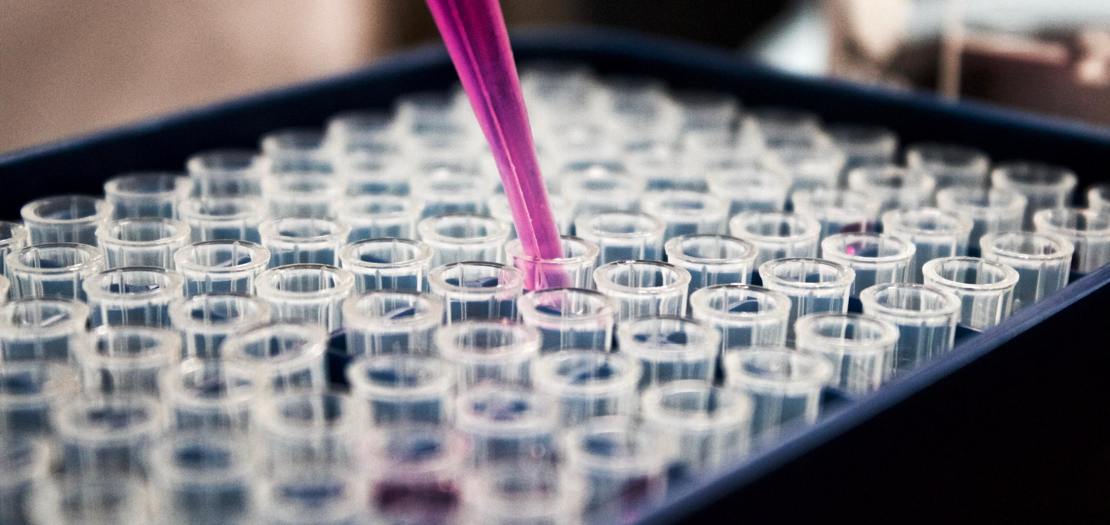 Research Reveals Potential New Strategy to Combat Urinary Tract Infections