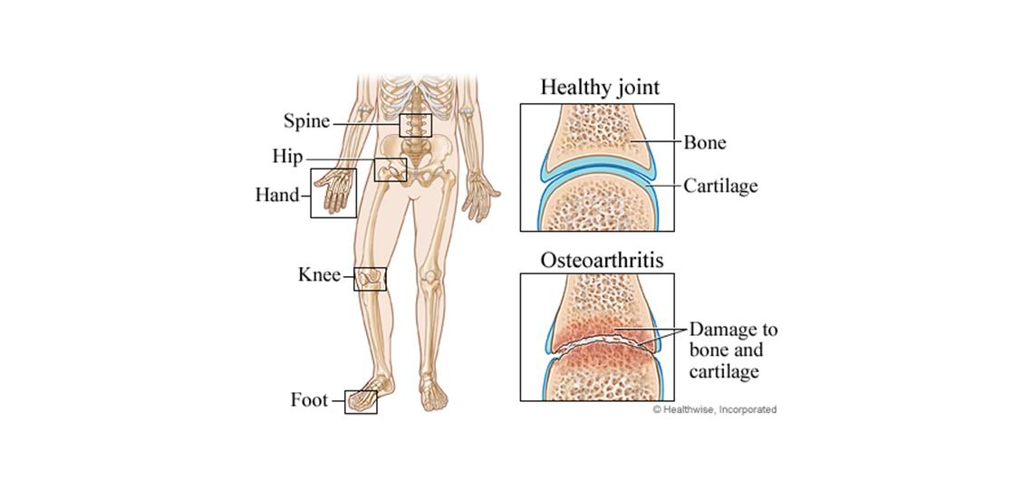 osteoarthritis in joints