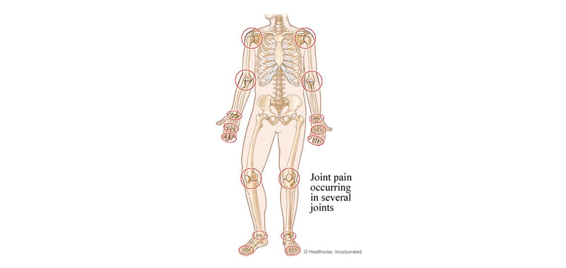 joints affected by rheumatoid arthritis