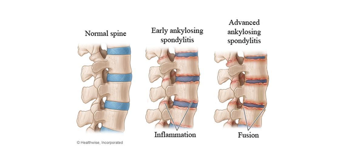 Spondylarthritis