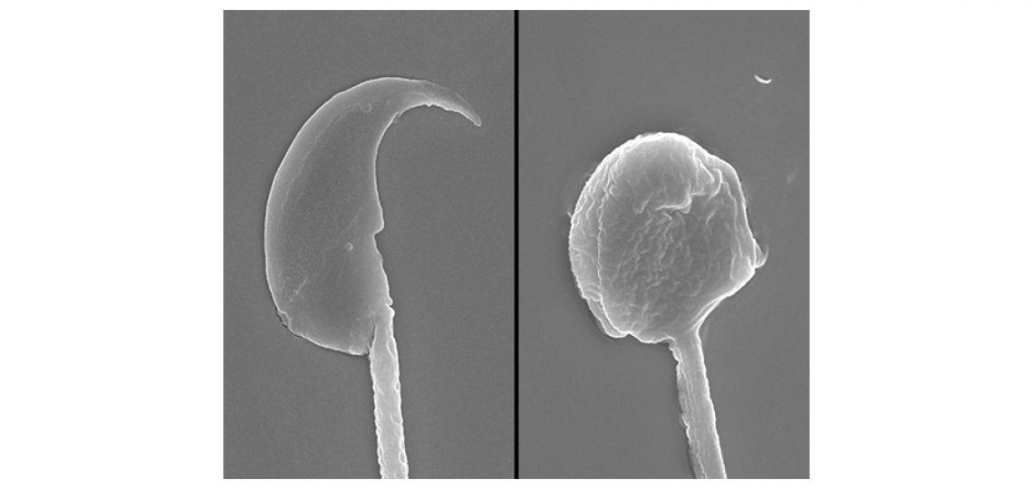 Mouse Sperm Head by Scanning Electron Microscopy