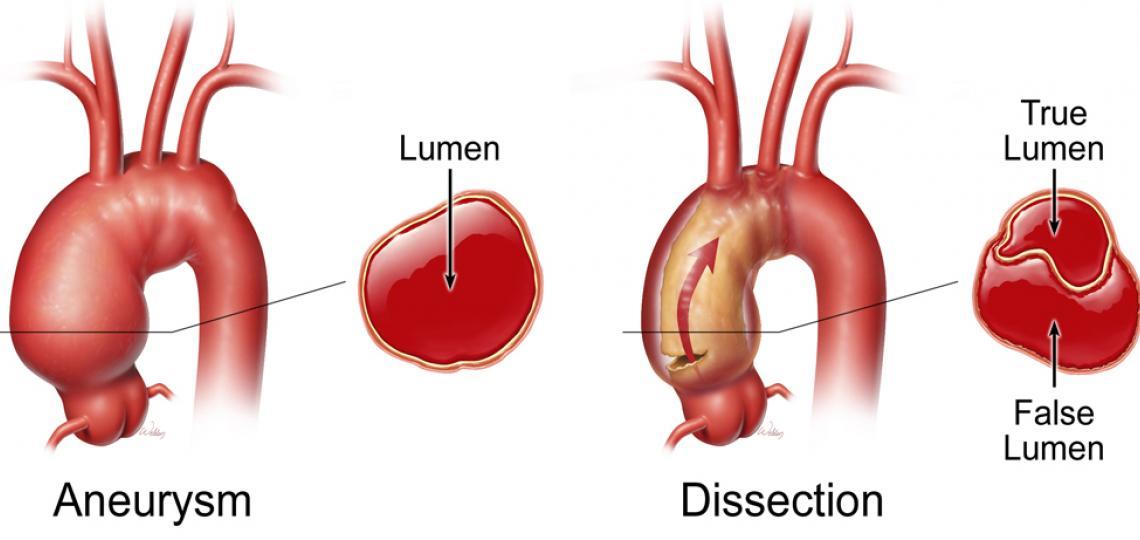Aneurysm VS Dissect Arch