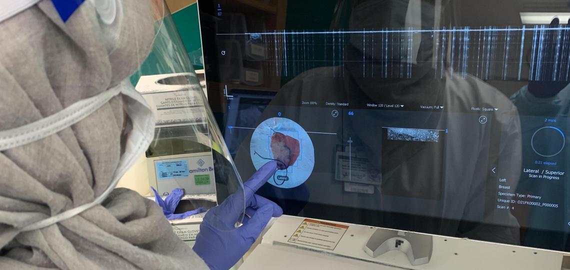 Researchers examine breast tissue removed during a lumpectomy using the OTIS ImgAssist technology.