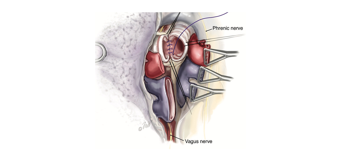 adult chest surgery at Baylor Medicine