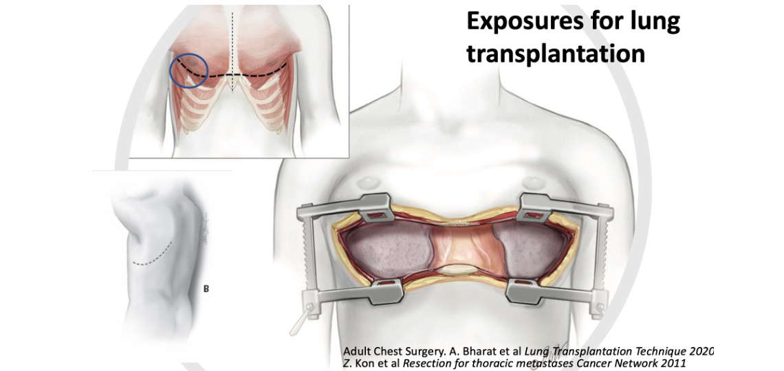 exposures for lung transplantation
