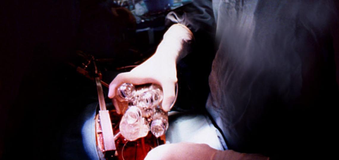 OH Frazier, M.D. implanting an artificial heart.