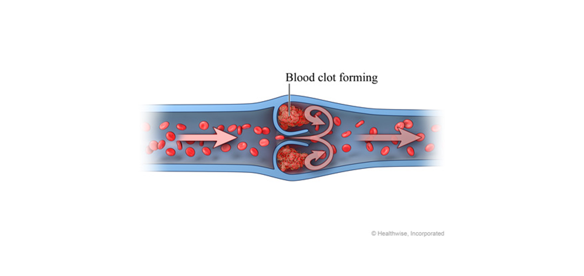 Image of blood clot formation in a human vein.