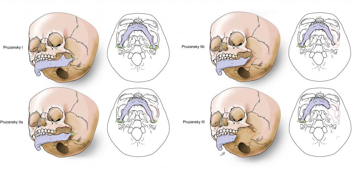 Craniofacial Microsomia Pruzansky classifications