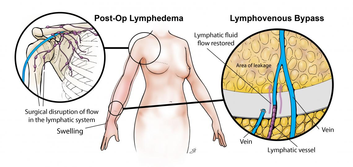 Lymphovenous bypass surgery