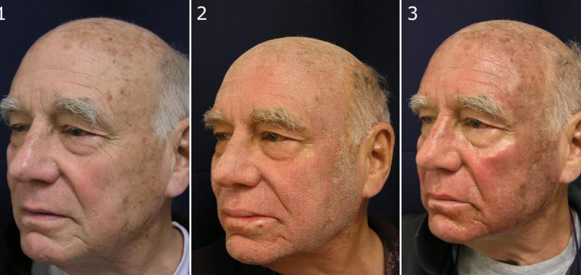 (1) Before Active FX laser treatment. (2) Immediately after treatment. (3) Four days after treatment.