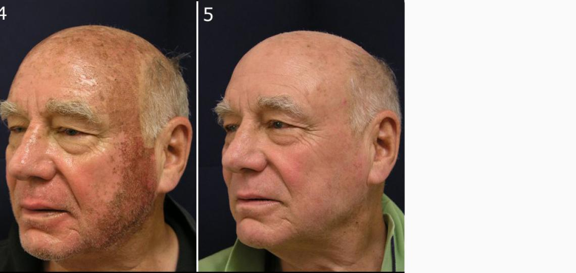 (4) Four days after Active FX laser treatment. (5) 10 days after second laser treatment.