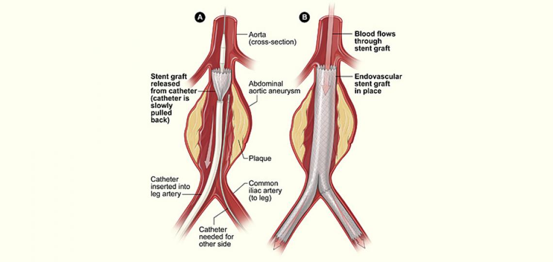 Illustration of a ruptured abdominal aortic aneurysm (AAA)
