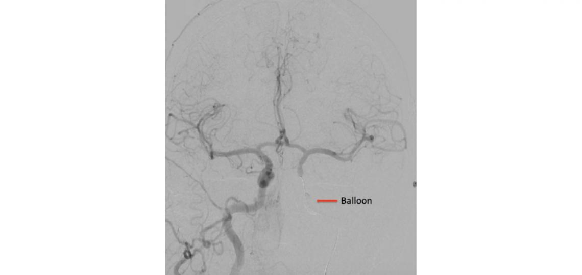 A right internal carotid artery injection with a balloon inflated in the left internal carotid artery (arrow) shows good collateral filling to the left hemisphere during a test occlusion of the left internal carotid artery.