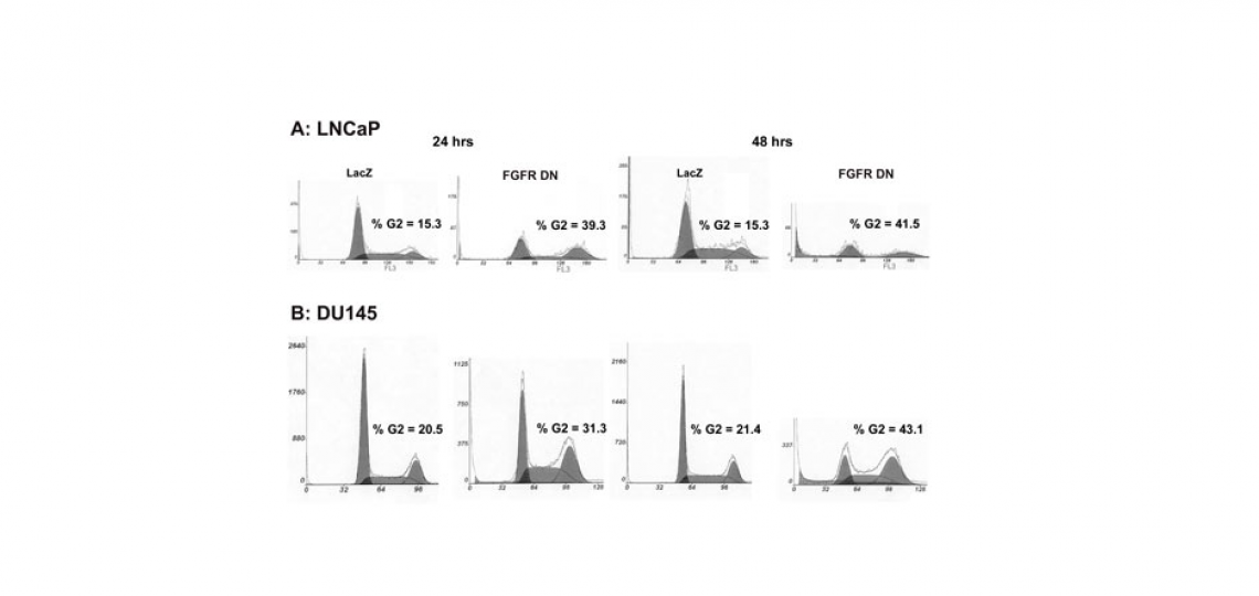 Cell cycle analysis of prostate cancer cells expressing dominant negative FGF receptor.