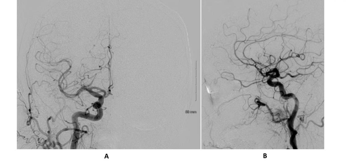 AP (A) and lateral (B) view of a right common carotid injection (normal angiogram)