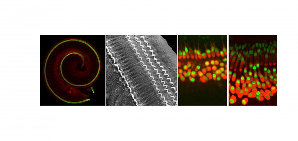 cochlea-spread-6.jpg