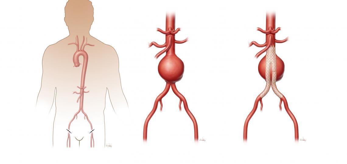 Endovascular repair of abdominal aortic aneurysm.