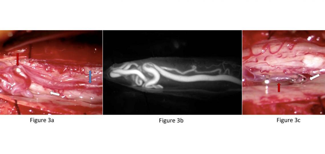 Figure 3. Spinal Vascular Malformation