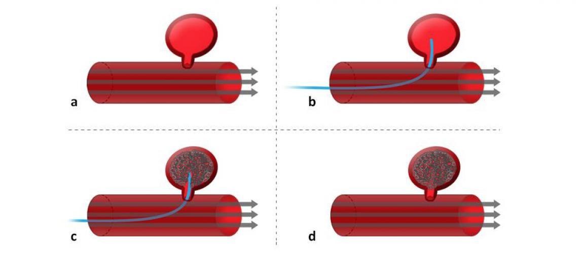Figure 4. Brain aneurysm coiling