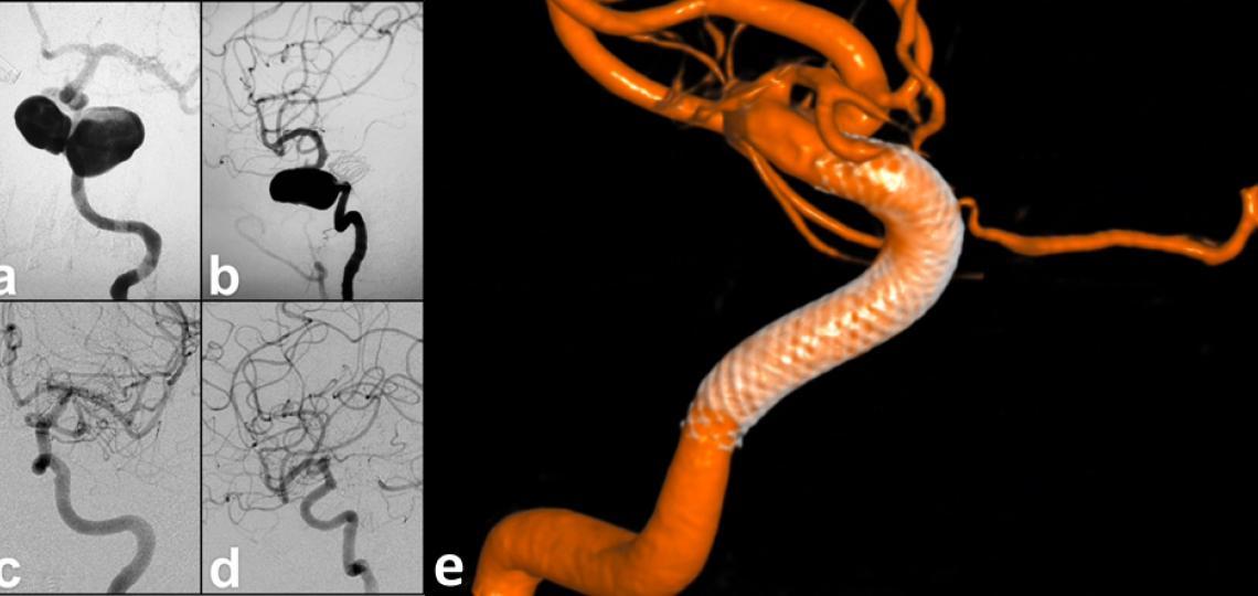 Figure 6. Brain aneurysm