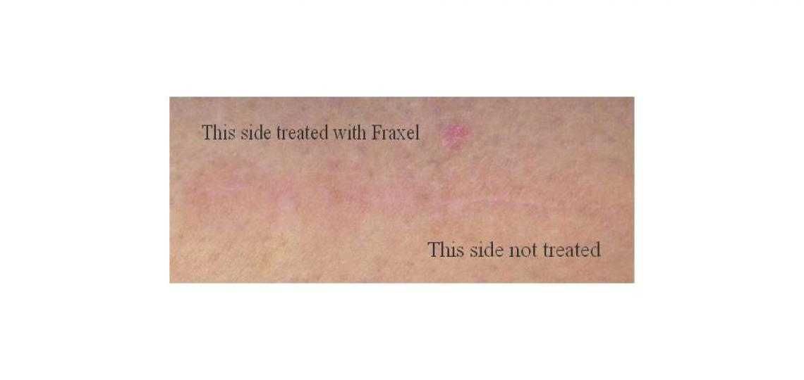 Above is a Baylor Dermatology patient who allowed treatment of one part of her surgical scar with three Fraxel sessions. The treated part of the scar has partially faded into the skin improving the appearance.