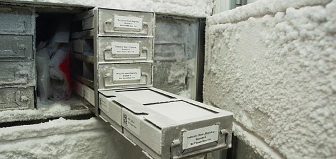 Repository, Tissue