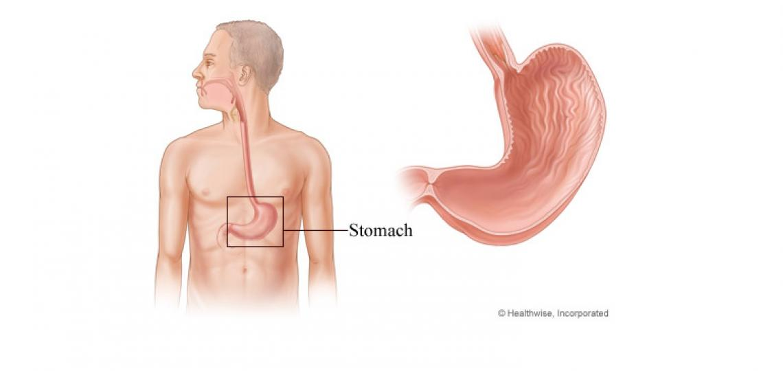 Gastrectomy is surgery to remove all or part of the stomach.