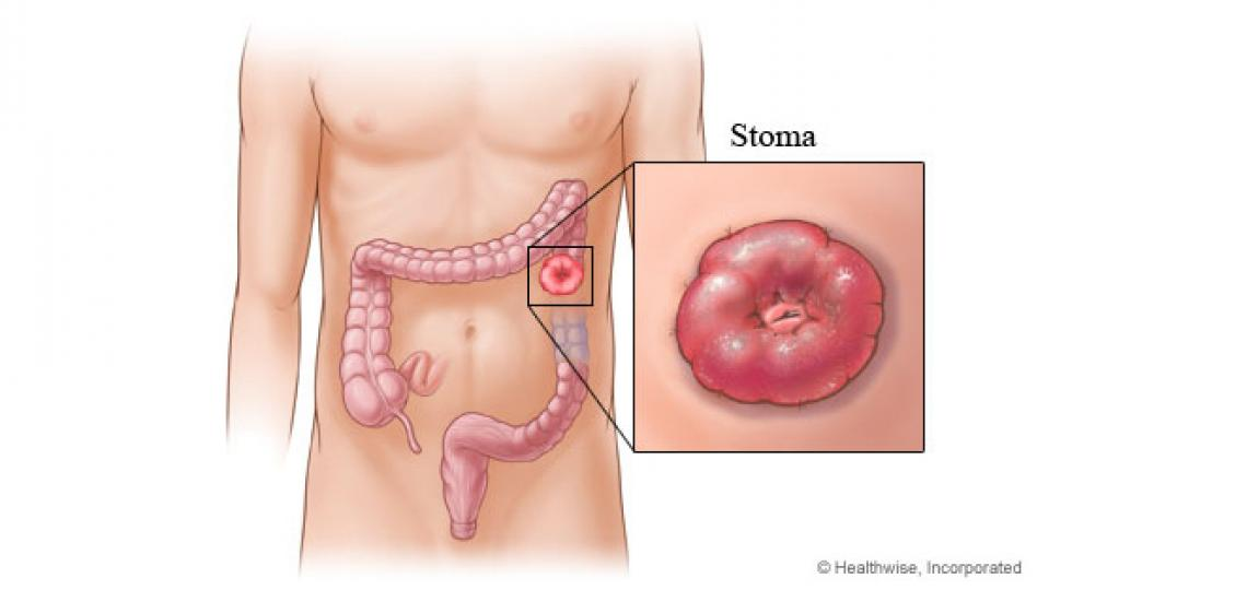 A colostomy