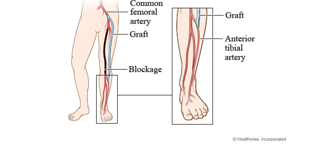 Peripheral artery bypass