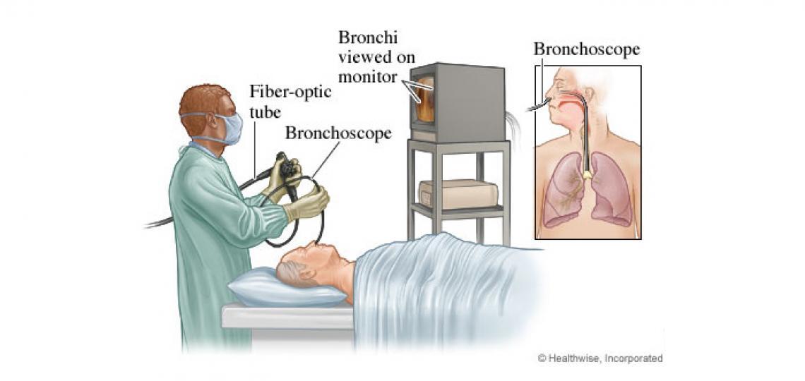 Bronchoscope