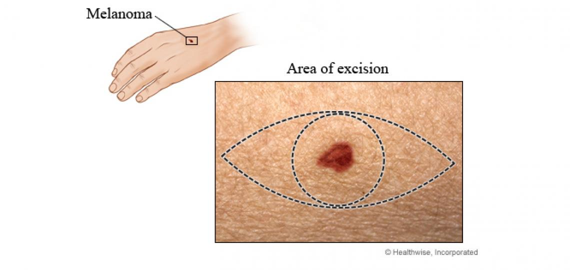 Wide local excision