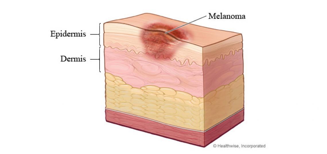 Melanoma - skin layers