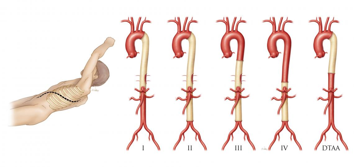 Incision site (left), and completed surgical repairs of thoracoabdominal aneurysm (right).