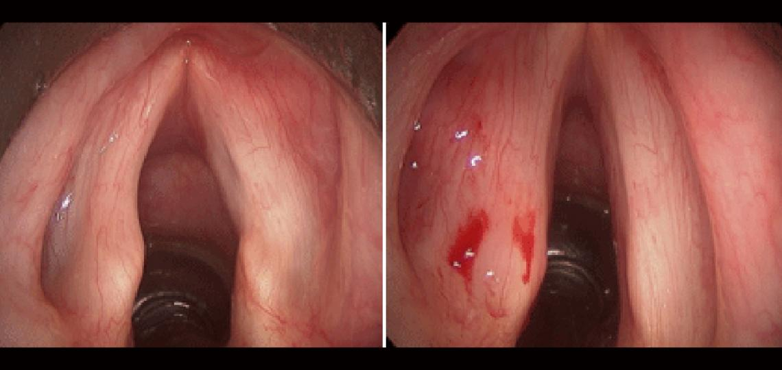 Before (left photo) and after (right photo) injection laryngoplasty