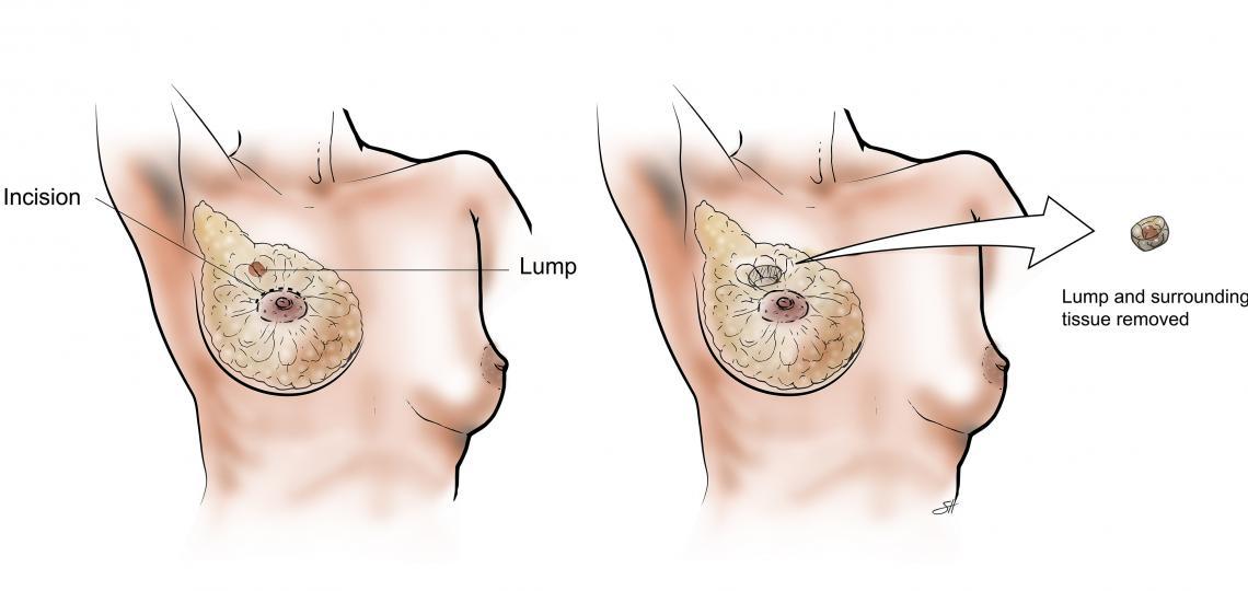 Diagram of Lumpectomy.