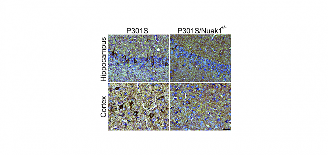 Brain section from mouse carrying the dementia-causing P301S mutation in human tau shows accumulation of tau neurofibrillary tangles (in dark brown, left). When Nuak1 levels are decreased by 50% (P301S/Nuak1+/-; right), fewer tau tangles accumulate.