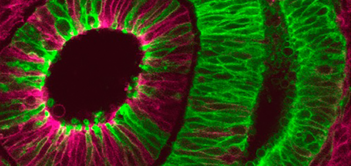 Image of the Month: The developing eye