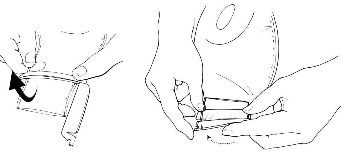 Closing an ostomy bag. Illustration by Scott Holmes