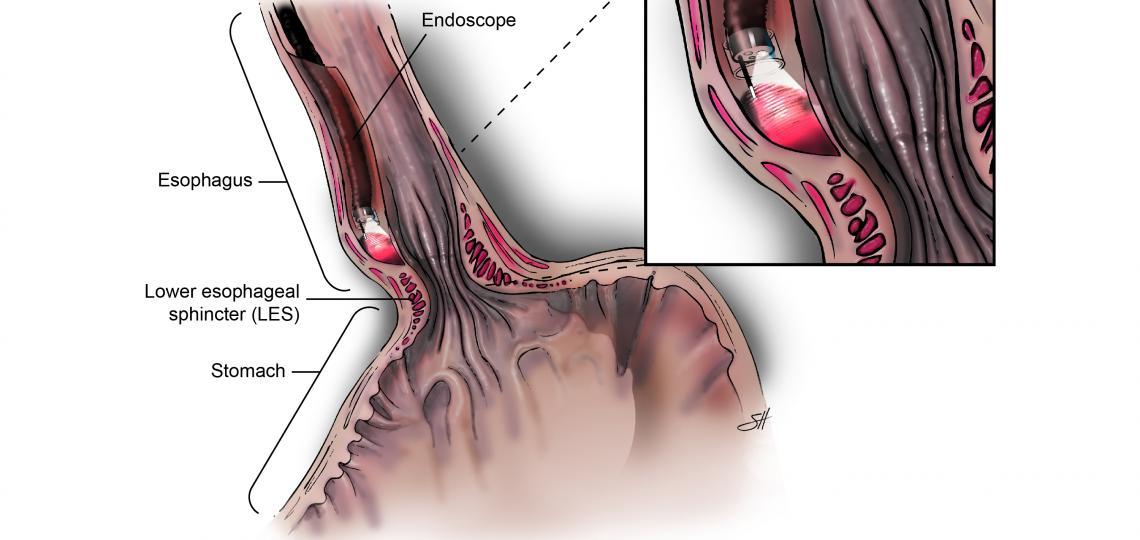 Peroral Endoscopic Myotomy (POEM)