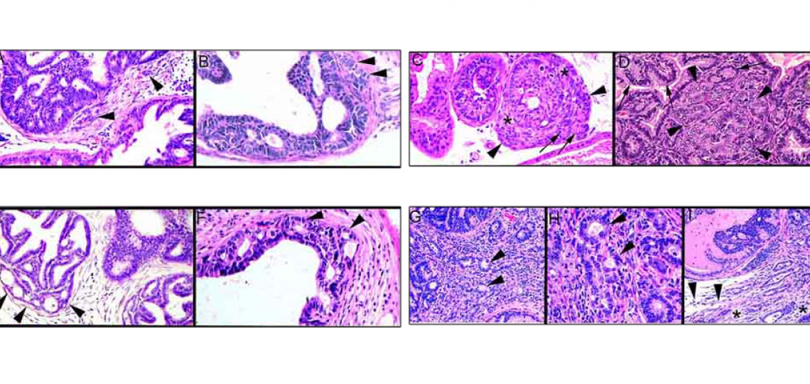 Prostatic neoplasia in the TRAMP mouse model of prostate cancer