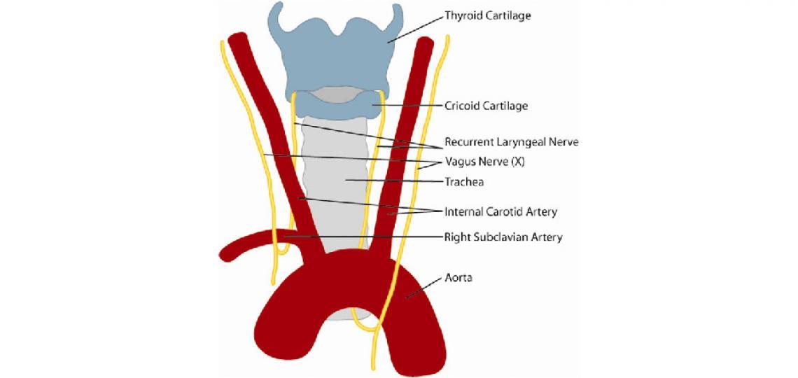 Recurrent laryngeal nerve (credit: Alexander Sevy, M.D.)