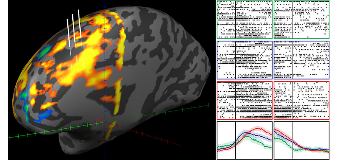 Investigating the physiology of controlled decision-making in human prefrontal cortex