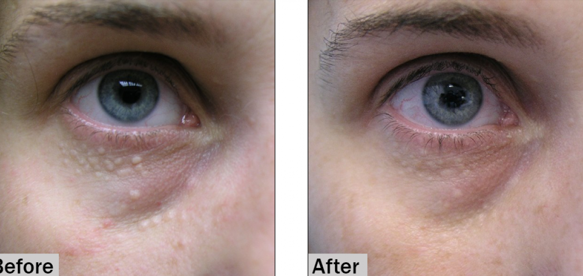 Syringoma, before and after