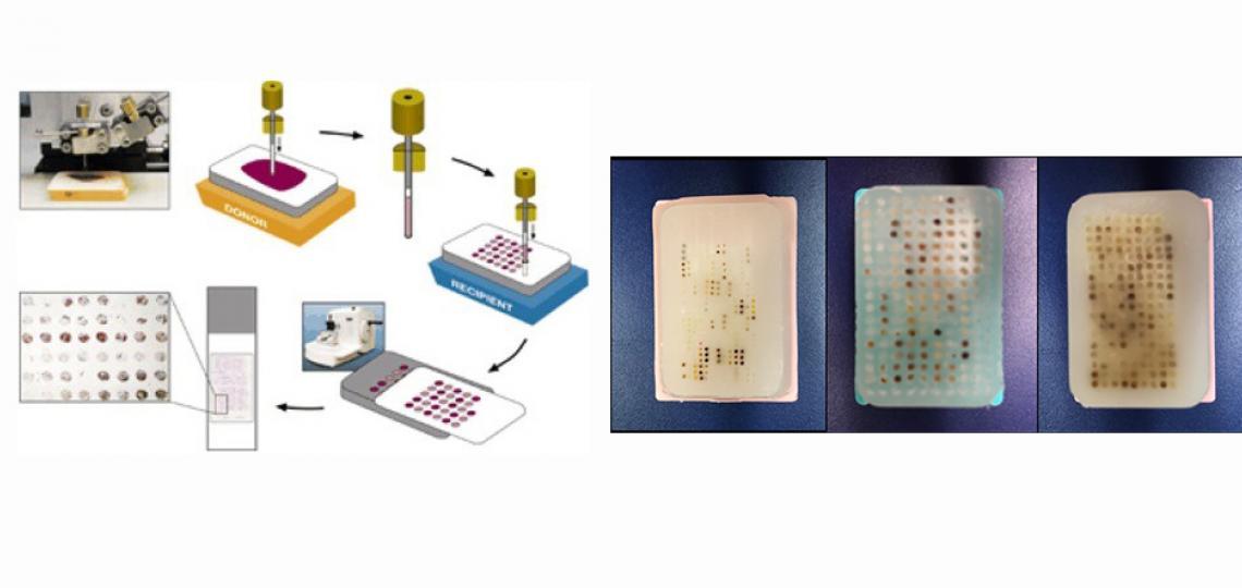 TMAs using human or animal model tissues