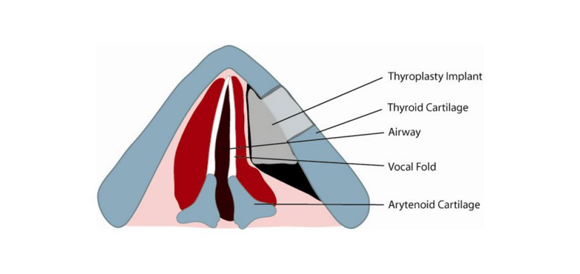 Type 1 thyroplasty (credit: Alexander Sevy, M.D.)