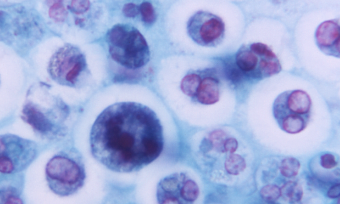 Magnified 1125X, this photomicrograph revealed the presence of a macrophage containing a number of phagocytized red blood cells (RBCs).